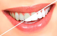 tooth-whitening1